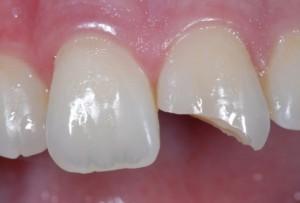 tooth-fracture-mild
