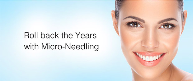 Micro Needling Summer Court Dental Hanover