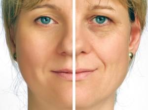 Botox-Treatment-Hanover-NH
